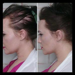 مزوتراپی مو چگونه است