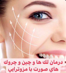 مزوتراپی برای درمان لک صورت