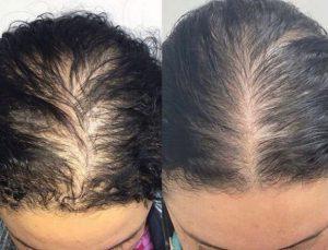 مزوتراپی مو موثر است