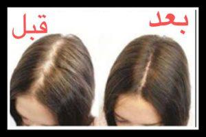 مزوتراپی مو قبل و بعد