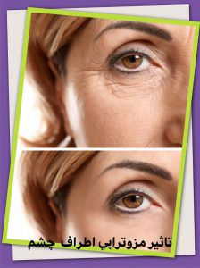 تاثیر مزوتراپی اطاف چشم