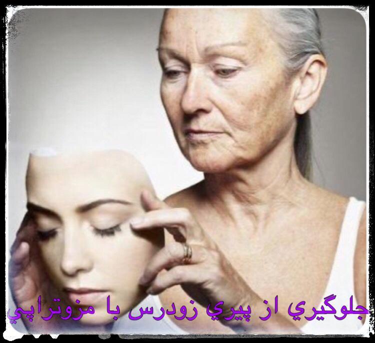 جلوگیری از پیری زودرس با مزوتراپی