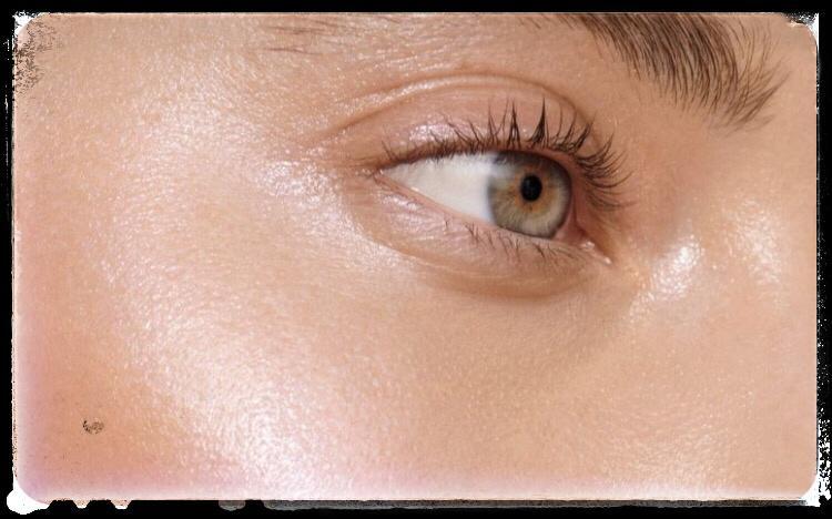 مزایای مزوتراپی برای درمان منافذ باز پوست