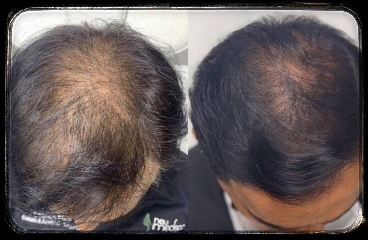 تاثیر مزوتراپی برای ریزش مو