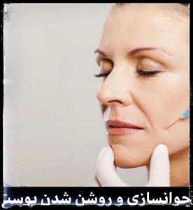 مزوتراپی وشن کننده پوست