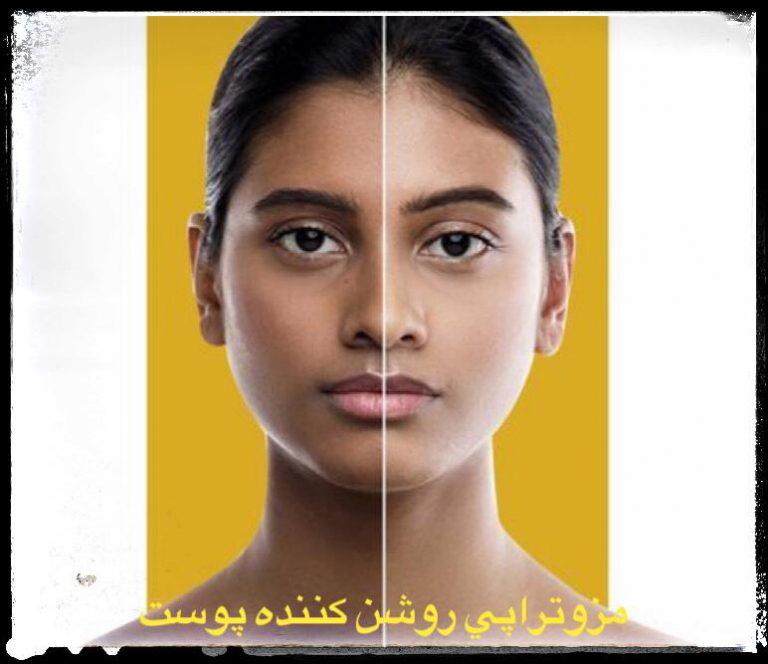 مزوتراپی روشن کننده پوست