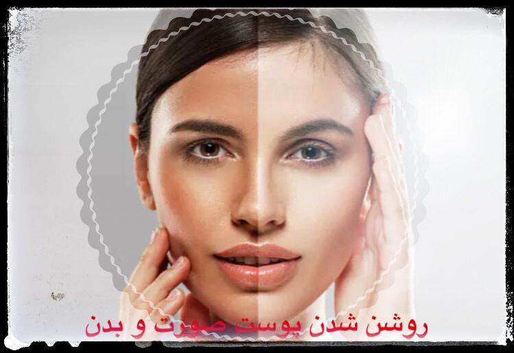 روشن شدن پوست صورت و بدن
