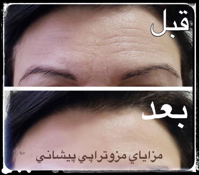 عکس مزوتراپی پیشانی قبل و بعد
