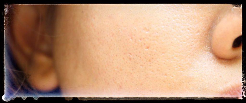 علت ایجاد منافذ باز پوست