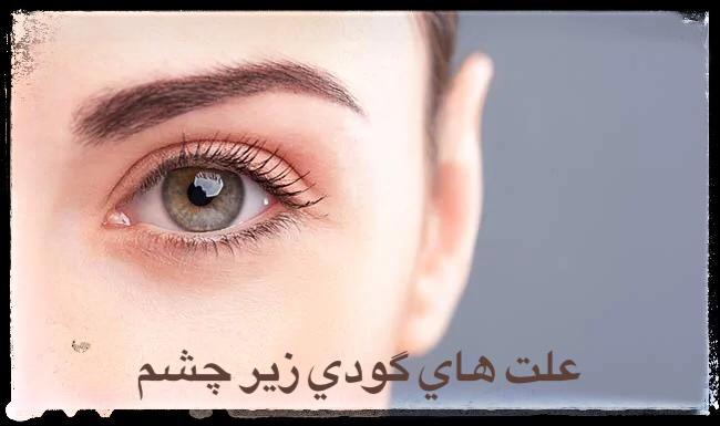 علت های گودی زیر چشم