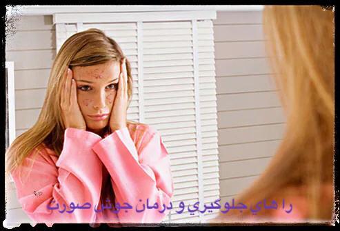 راه های جلوگیری و درمان جوش های صورت