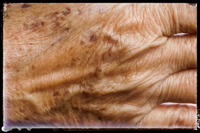 انواع لک پوست
